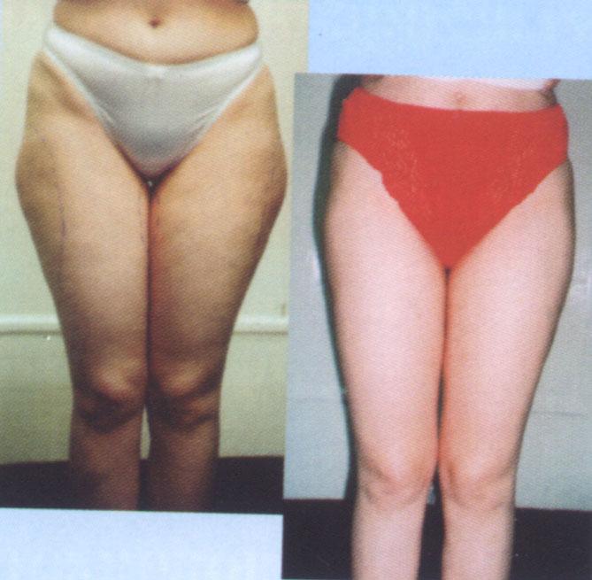 метод куэ при похудении отзовик